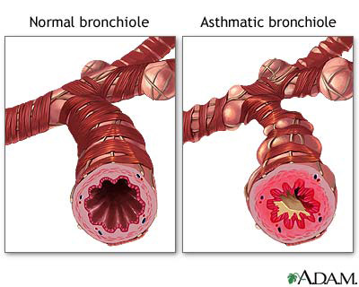 Image of a normal bronchiole and an asthmatic bronchiole