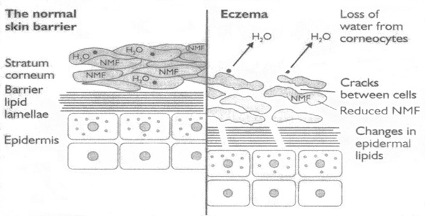Image of a normal skin barrier compared to eczema