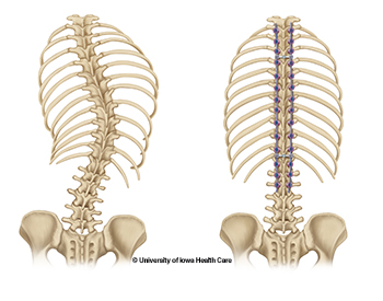 Posterior spinal fusion illustration of before and after