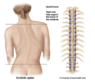 Scoliotic spine and an illustration of steel rods