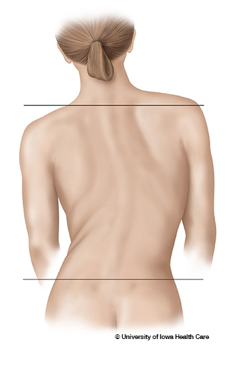 Signs of scoliosis
