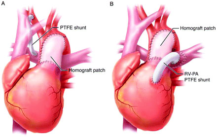 Stage 1 of single ventricle repair