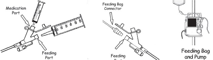 Using Your PEG Tube drawings of feeding